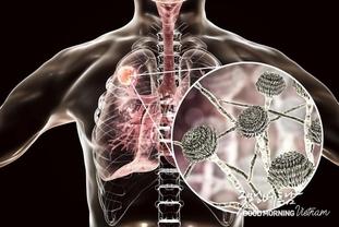 거의 매년 15,000명의 베트남인들이 급속 페질환에 감염
